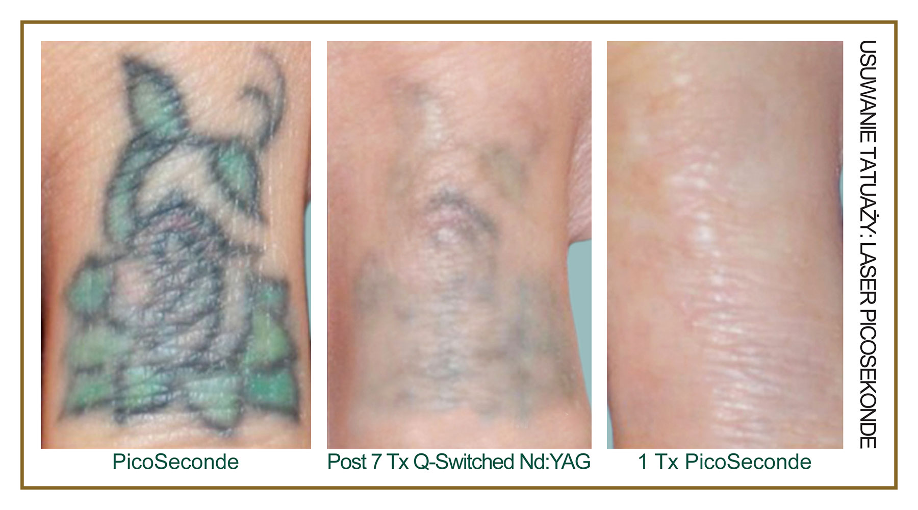 Tattoo-Removal-Laser-PicoSecond-PL-2.jpg