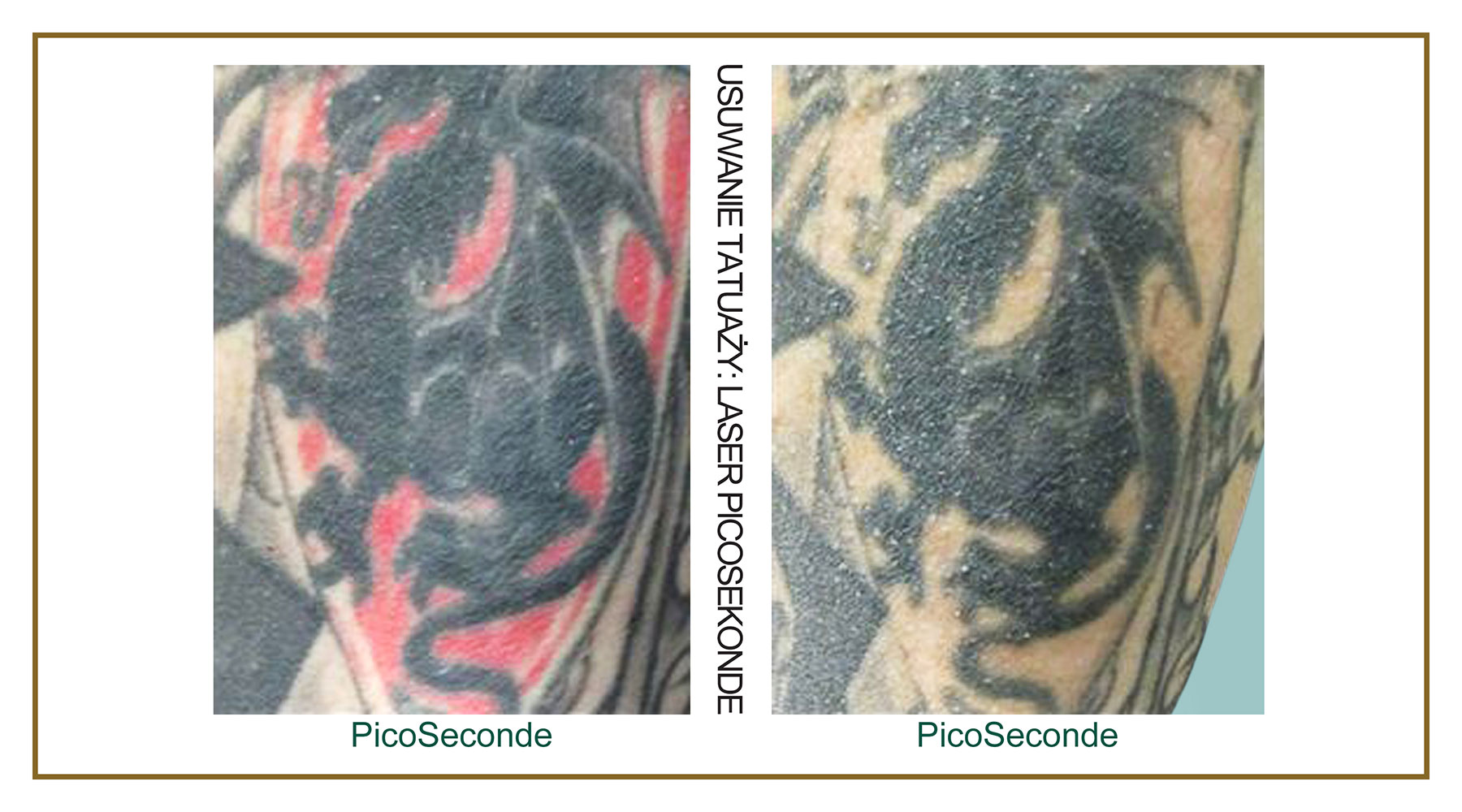 Tattoo-Removal-Laser-PicoSecond-PL-4.jpg