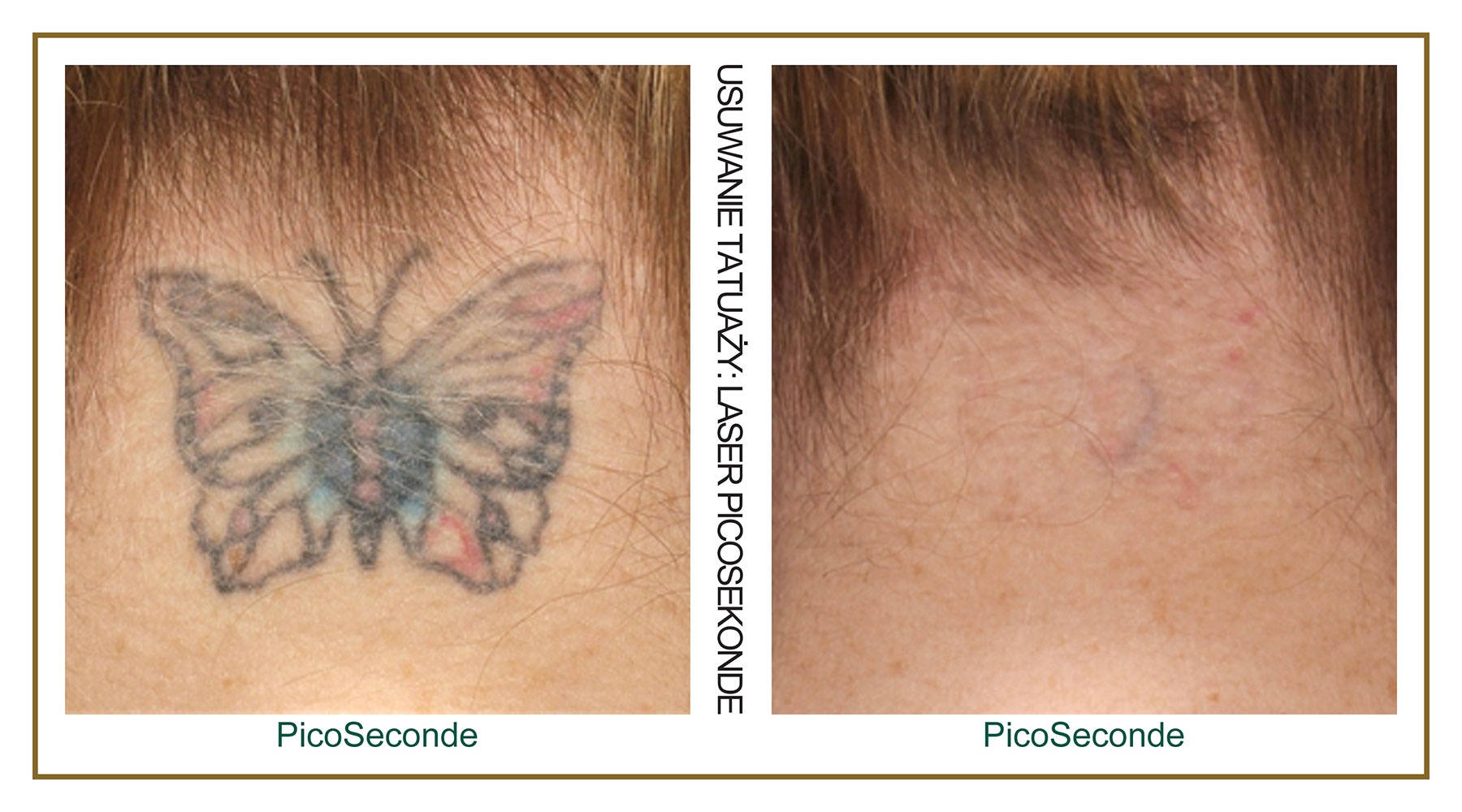 Tattoo-Removal-Laser-PicoSecond-PL-5.jpg
