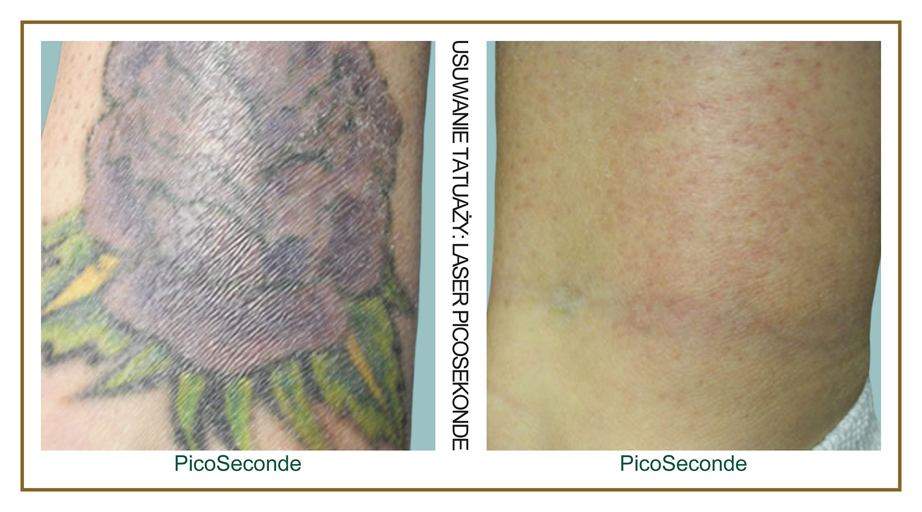 Tattoo-Removal-Laser-PicoSecond-PL-6.jpg